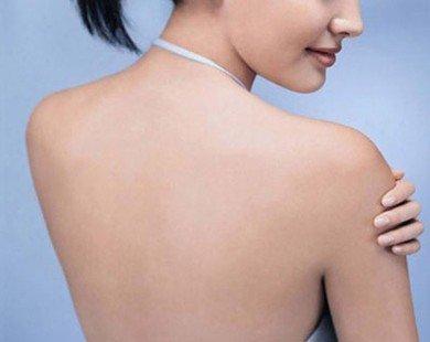 4 biện pháp đơn giản trị mụn lưng ngày nóng