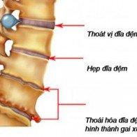 Phát hiện và điều trị bệnh thoái hóa cột sống