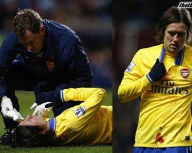 Bị vỡ mũi, Rosicky vắng mặt tại trận gặp Fulham