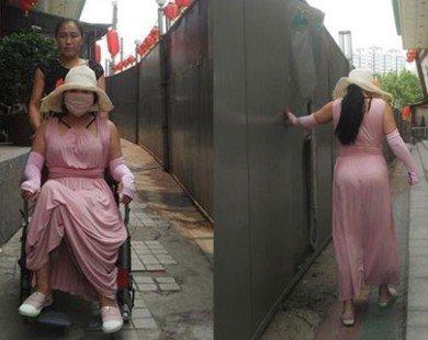 """Tấn bi kịch của cô gái """"dao kéo nhiều nhất Trung Quốc"""""""