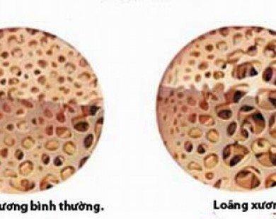 Nguyên nhân và các yếu tố nguy cơ của bệnh loãng xương