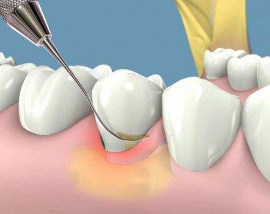Mẹo hay trị viêm lợi, chảy máu chân răng hiệu quả không cần dùng thuốc