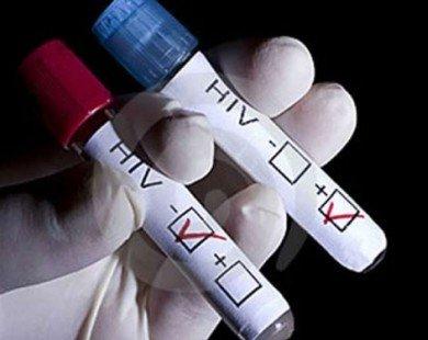 Công nghệ mới giúp phát hiện HIV chỉ sau 1 tuần phơi nhiễm