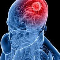 Kết hợp thuốc có thể giúp điều trị ung thư não