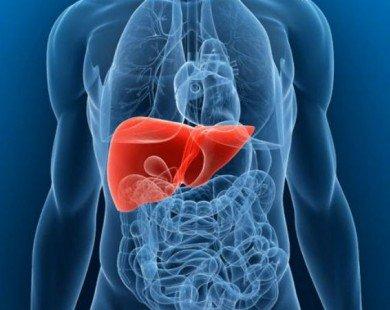 Liệu pháp tự nhiên điều trị gan nhiễm mỡ