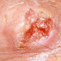 Dấu hiệu ung thư da ngoài nốt ruồi