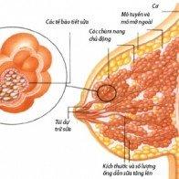 Các bệnh tuyến vú lành tính