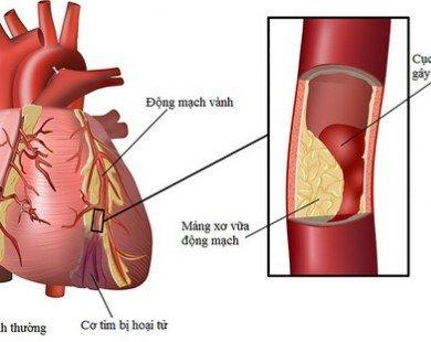 Chất béo trong máu lợi, hại và cách hóa giải