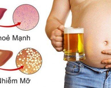 Tránh xa 4 thói quen khiến bạn bị gan nhiễm mỡ