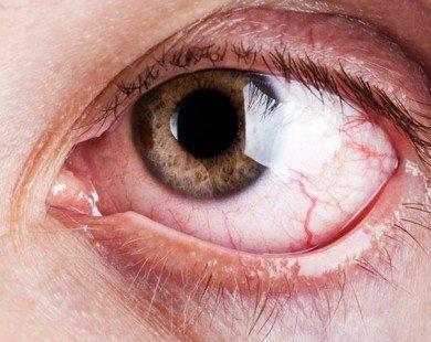 Cách đơn giản giúp khắc phục tình trạng mỏi mắt do làm việc với máy tính