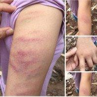 Học sinh bị giáo viên đánh bầm tím tay vì làm thiếu bài tập