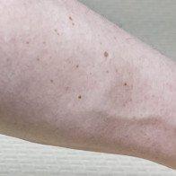 Nốt ruồi trên cánh tay tỉ lệ thuận với nguy cơ ung thư da