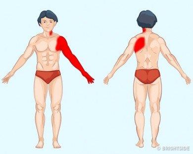 Khoanh vùng bệnh tật nhờ phát hiện ra những cơn đau bất thường