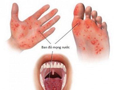 Bạn biết gì về bệnh tay - chân - miệng?
